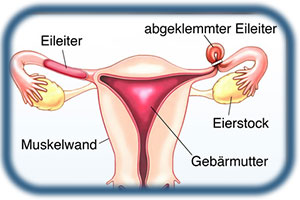 Sterilisation frau nebenwirkungen